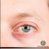 tratamento para olheira profunda