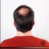 tratamento para calvície masculina