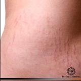 tratamento para estrias dermatologista