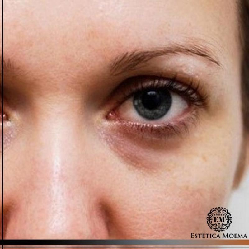 Tratamento para Olheiras com ácido Hialurônico Valor Moema - Tratamento para Olheiras Muito Escuras