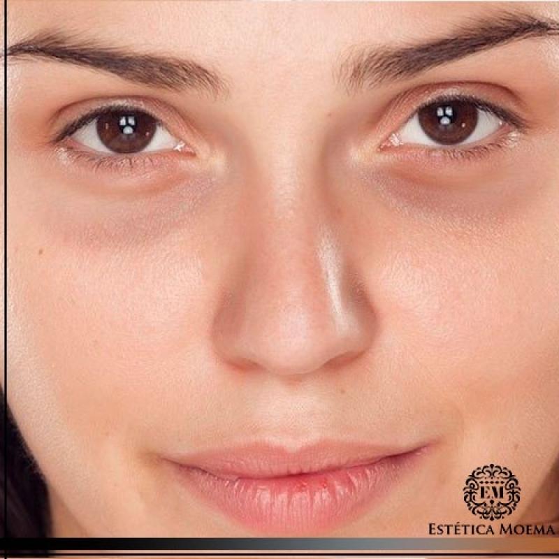Tratamento para Olheiras com Laser Consolação - Tratamento para Olheiras Muito Escuras