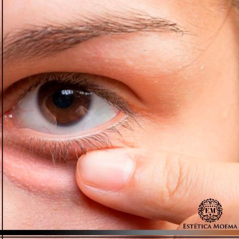 Tratamento para Olheiras Escuras Preço Jardim América - Tratamento para Olheiras Muito Escuras